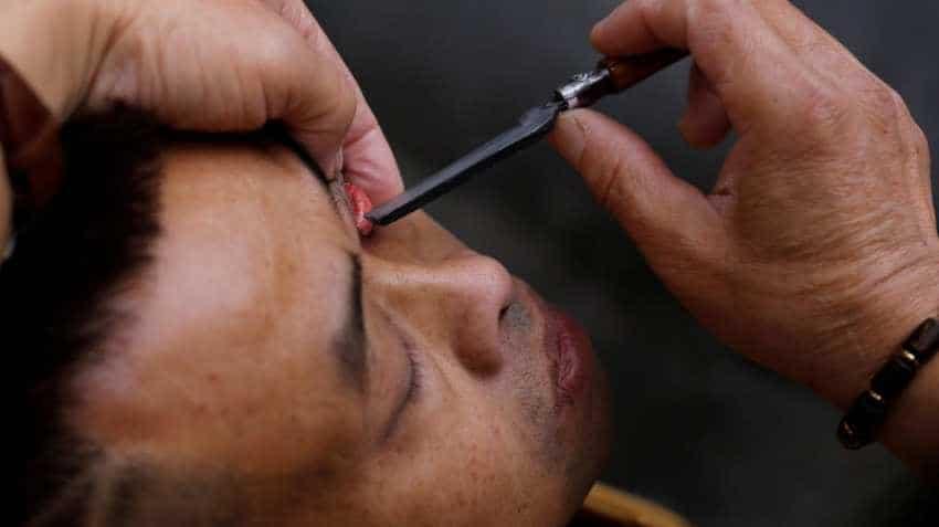 Sun Pharma receives USFDA nod ophthalmic solution used to treat dry eye disease